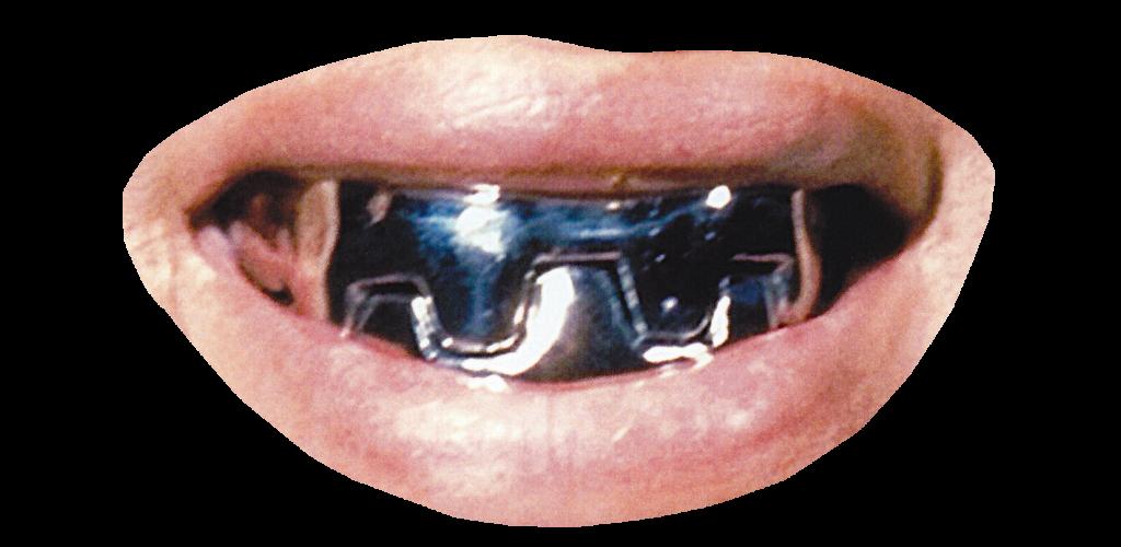 Metal Mouth - Bond Movie. Dougie Scott